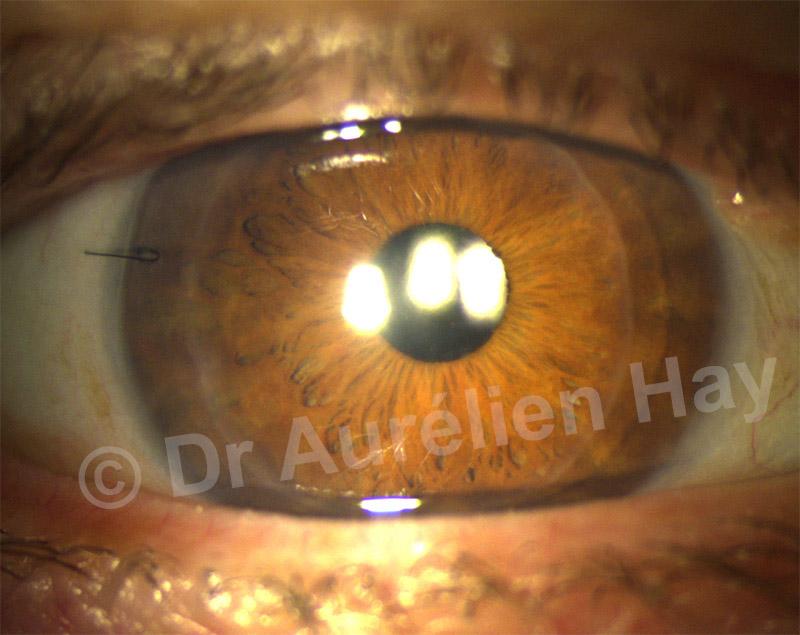 oeil larmoyant après opération cataracte